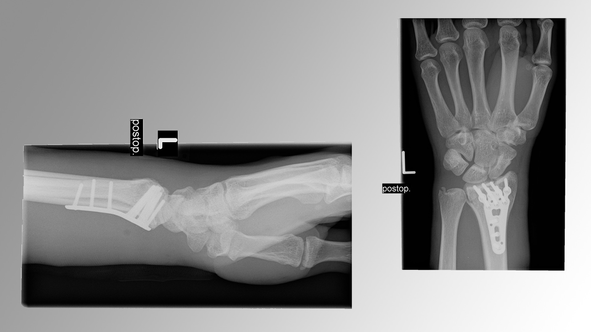 Verletzungsupdate